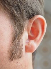 Aging and Hearing Loss Problems